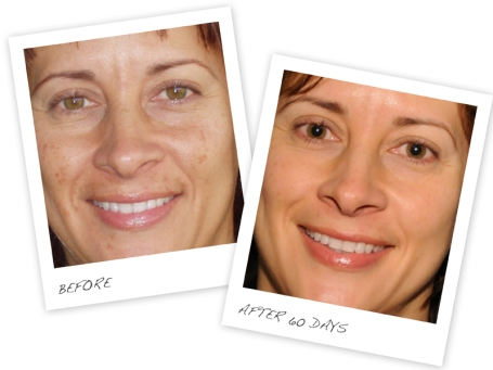 Real Results: Rodan and Fields REVERSE Regimen